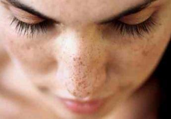 Συμβουλές για να αποφύγετε τις πανάδες στο δέρμα φέτος το καλοκαίρι; - Κεντρική Εικόνα