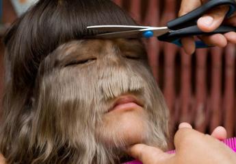 Η πιο τριχωτή έφηβη στον κόσμο ξυρίστηκε γιατί ερωτεύτηκε [εικόνες & βίντεο] - Κεντρική Εικόνα